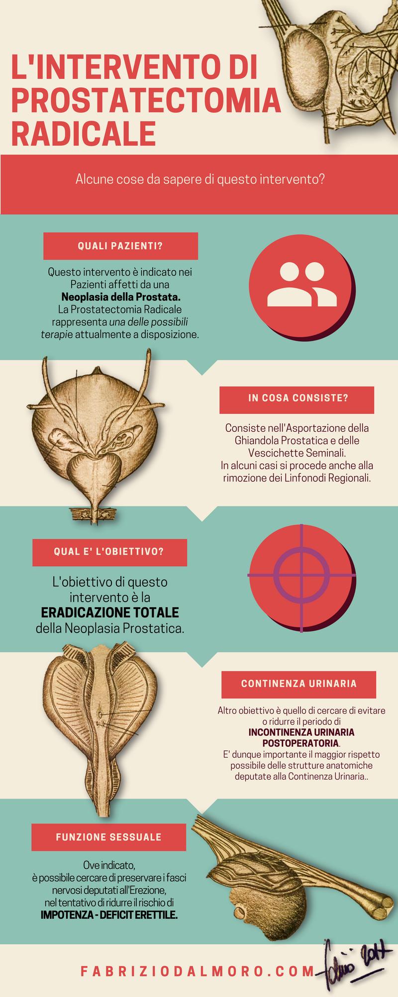 come avere una erezione dopo prostatectomia radicale no nerve sparing surgery